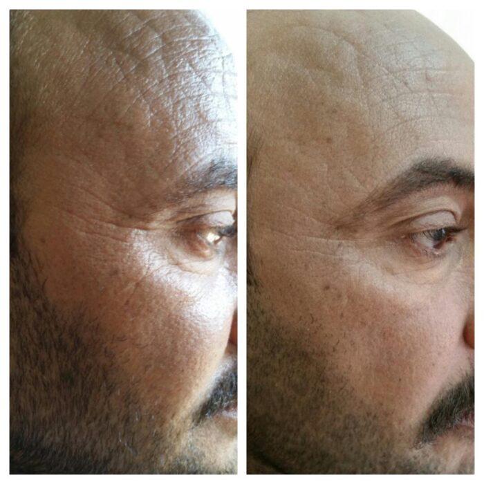 Dermapen - efekty na skórze mężczyzny