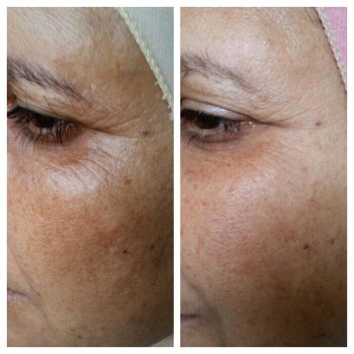 Dermapen - efekty zabiegu na skórze starzejącej się