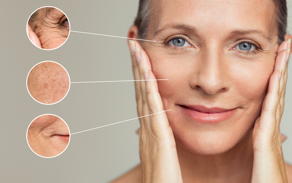 Mezoterapia igłowa - sposób na niedoskonałości skóry