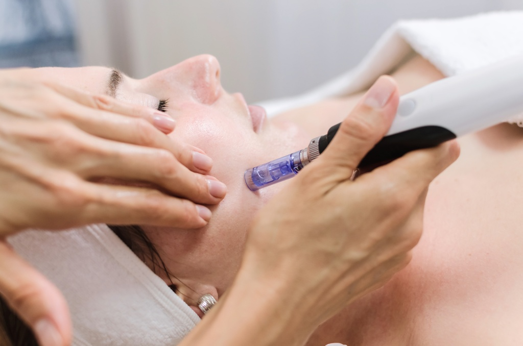 Mezoterapia mikroigłowa w salonie Tallulah Hair & Beauty